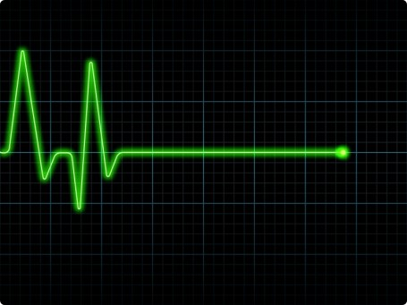 eletrocardiograma-455x341