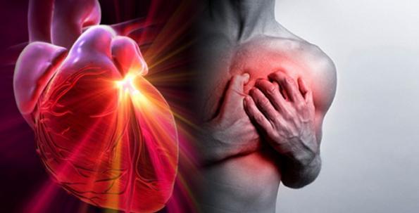 infartoedicion2