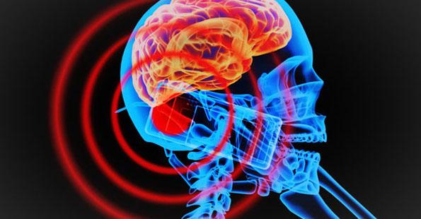 Radiation-Brain-Cellphone
