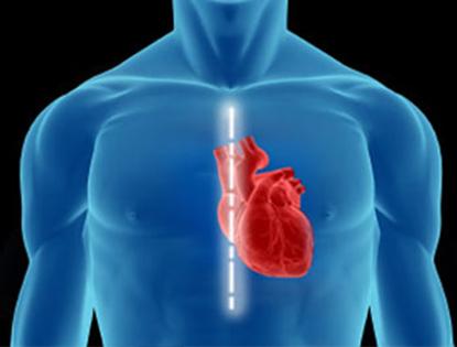 Resultado de imagem para coração com stent